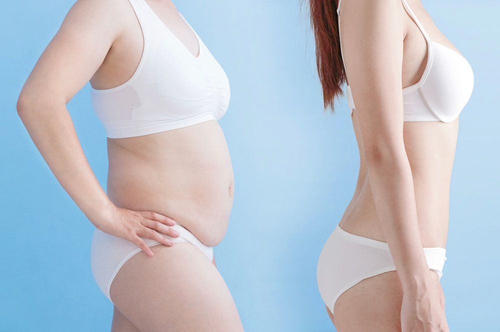 Your Guide to Getting a Tummy Tuck – Cosmetic Surgery of New York